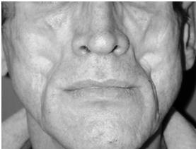 lipoatrophy Hiv facial
