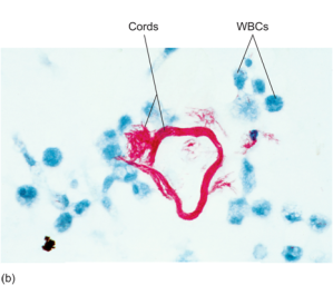 """Figure 3. Again, Mycobacterium Tuberculosis, Also of Serpentine Or """"Worm-like"""" Form in Its Deadly Cord Formation."""