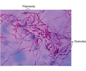Figure 4A. Filamentous Cell-Wall-Deficient Forms of Mycobacterium tuberculosis.