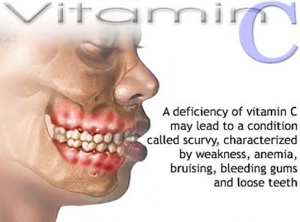 Scurvy, a disease of significant Vitamin C deficiency becomes rapidly noticeable. Among its signs and symptoms are weakness, anemia, bruising, bleeding gums and loose teeth.